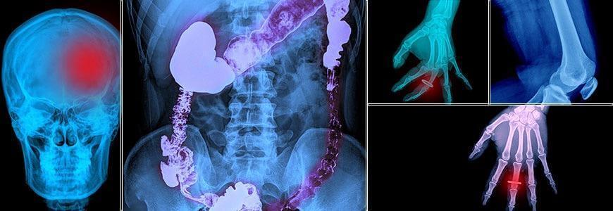 تصویر دیچیتالی از نمای بدن یک انسان است که استخوان های آن و محل دقیق عامل بیماری به راحتی دیده می شود.